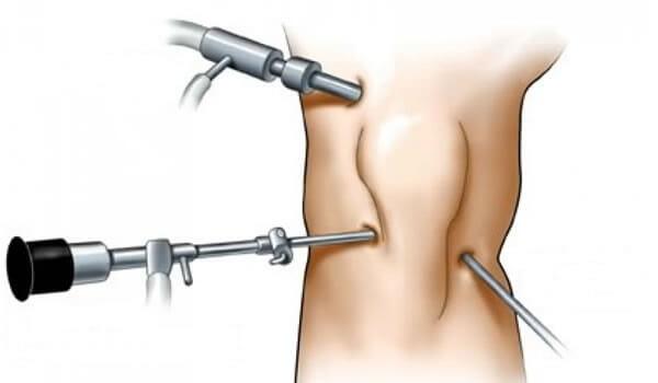 Упражнения после операции на мениске коленного сустава раствор для укрепления суставов калоидный