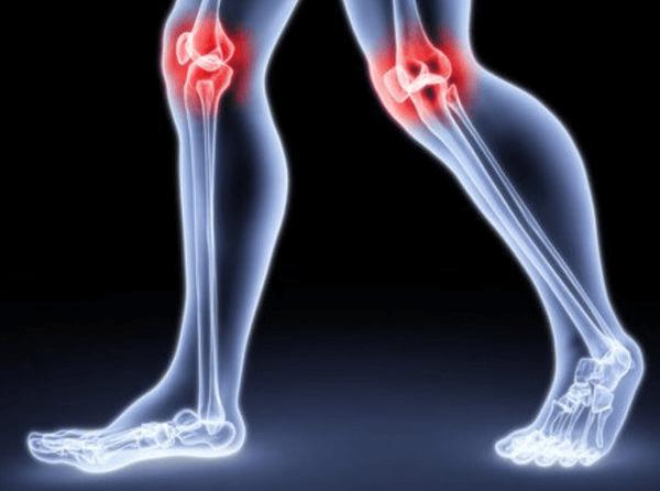 От чего хрустят ноги когда ходишь